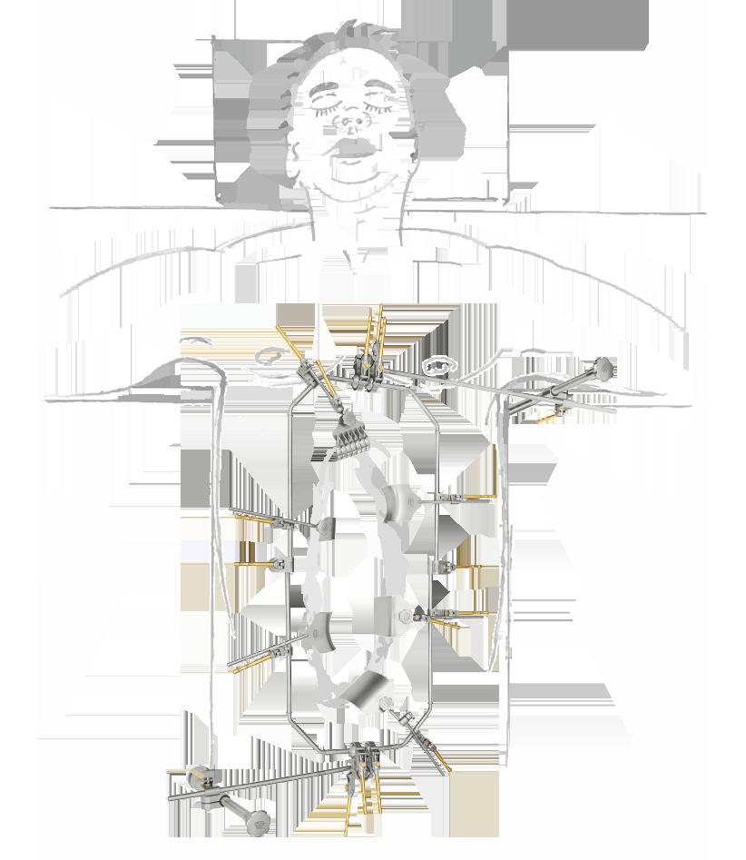 adipositas-chirurgie-mit-zeichnung