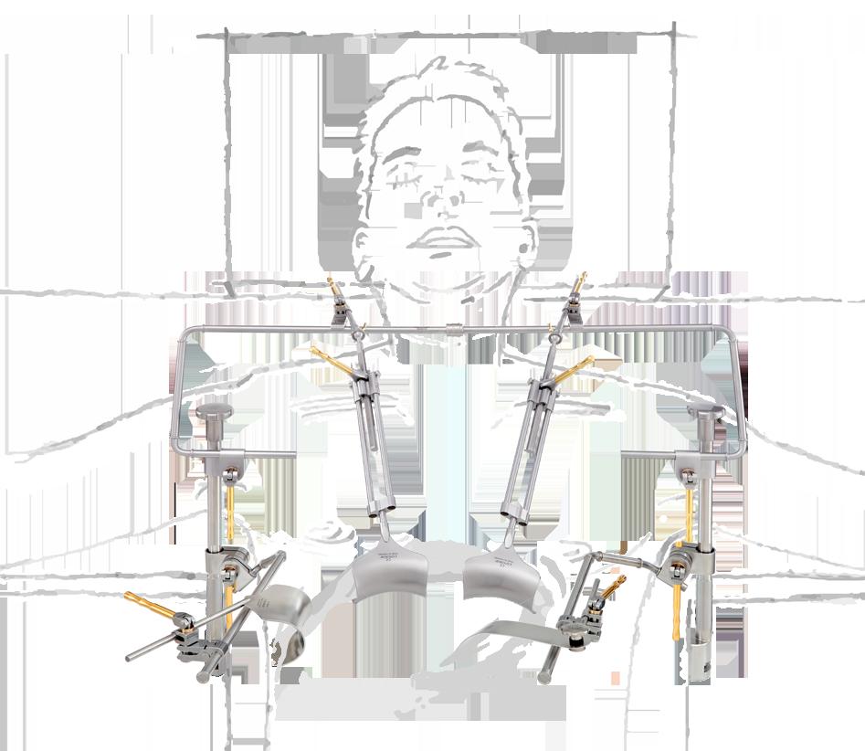 rochard-system-oberbauch-mit-zeichnung