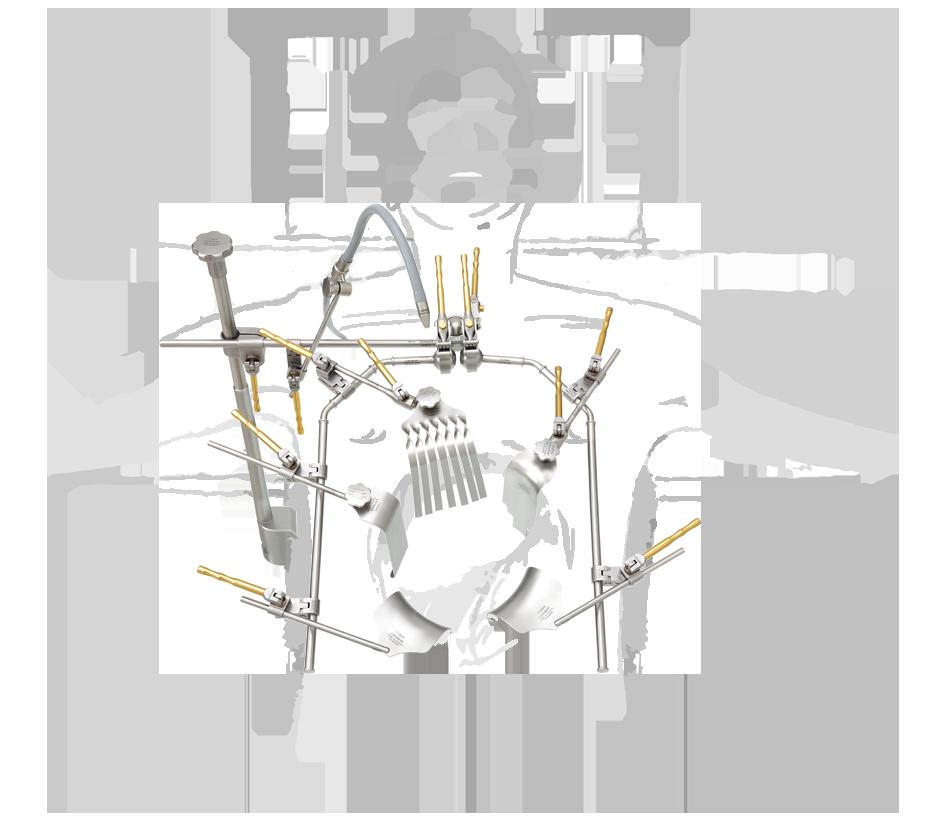 abdominal-chirurgie-bauch-mit-zeichnung