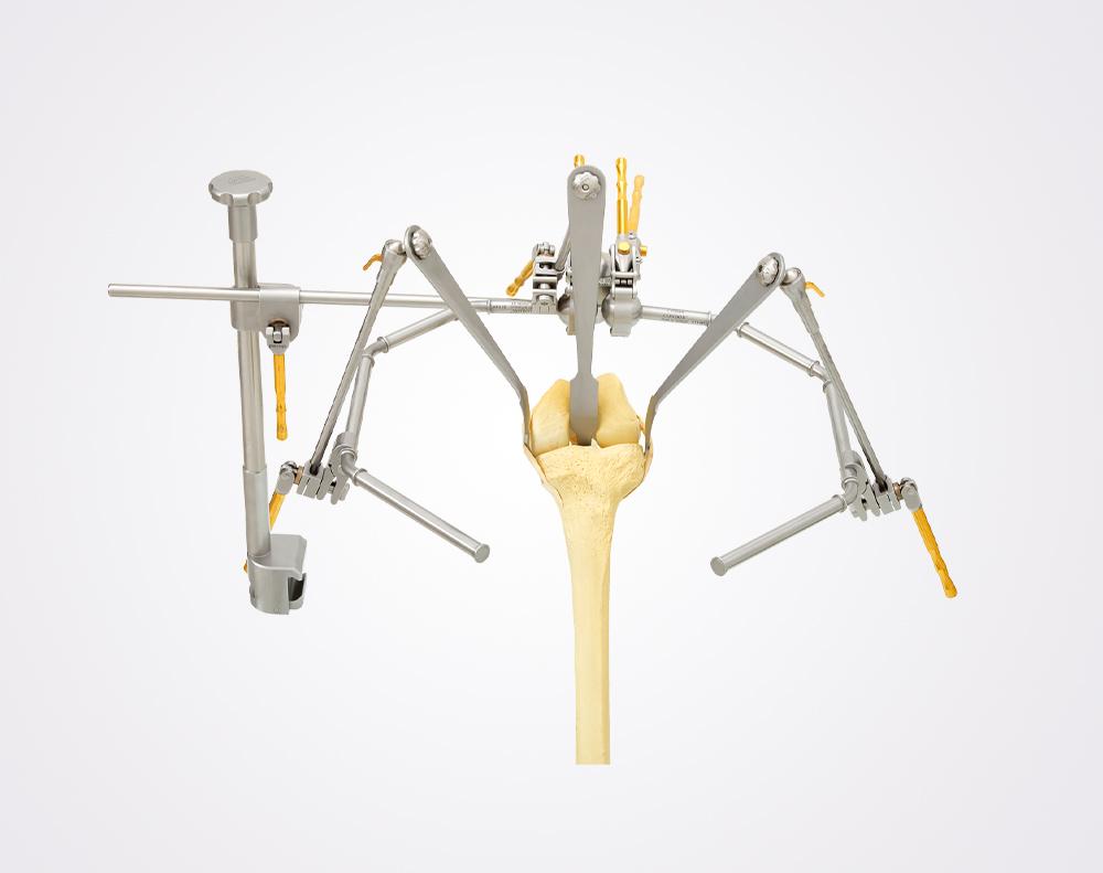 condor-goldline-endoprothetik-knie-orthopaedie