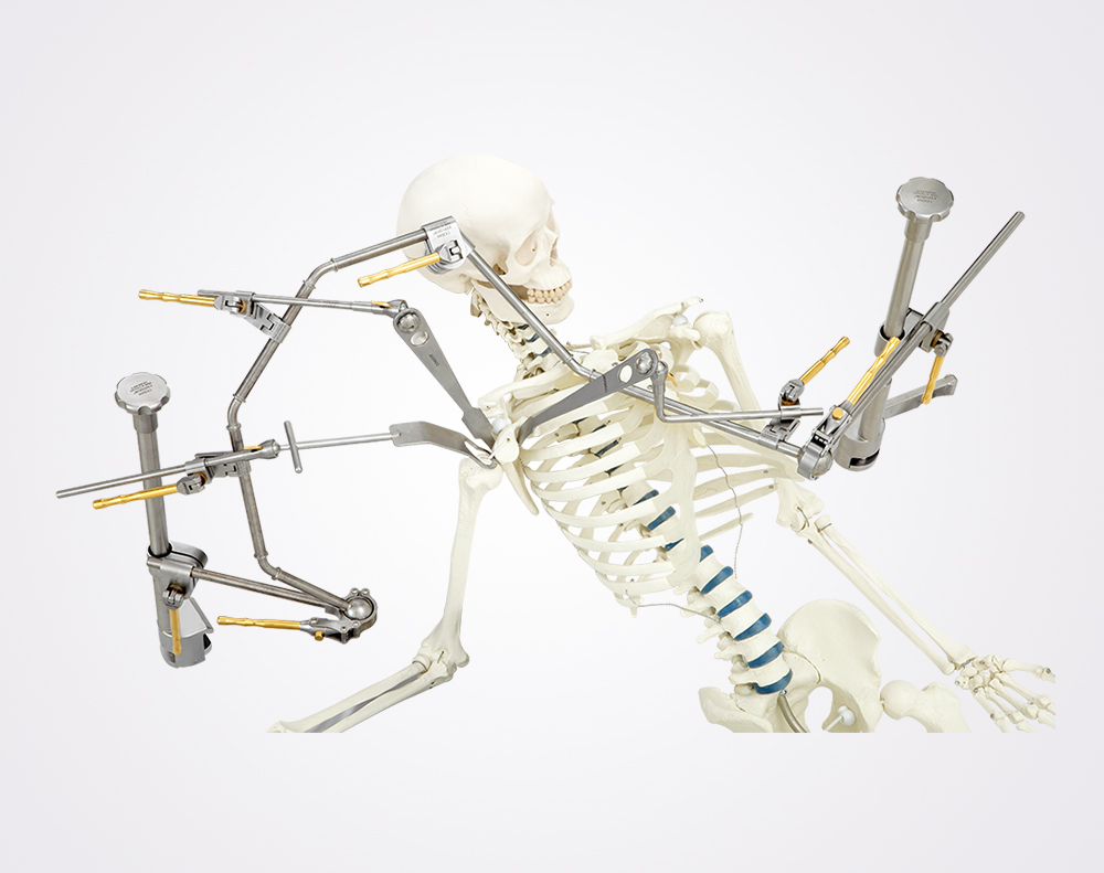 condor-goldline-endoprothetik-schulter-orthopaedie