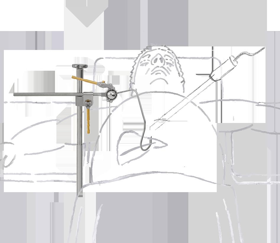 leberretractor-mit-zeichnung