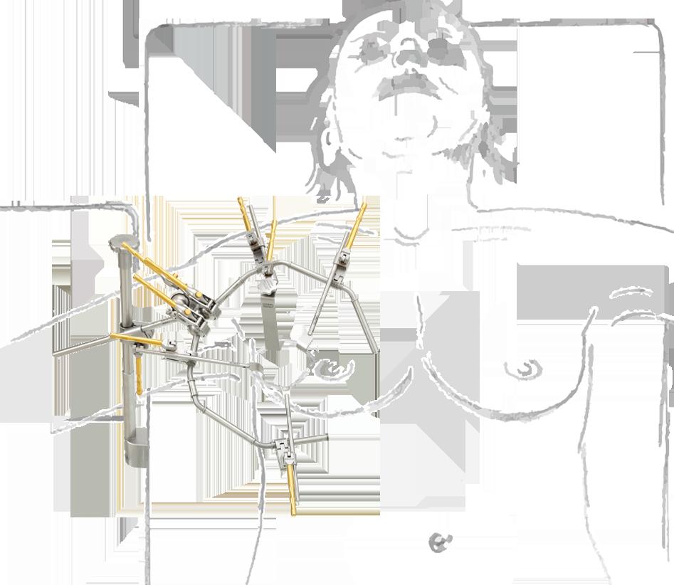 mamma-chirurgie-mit-zeichnung