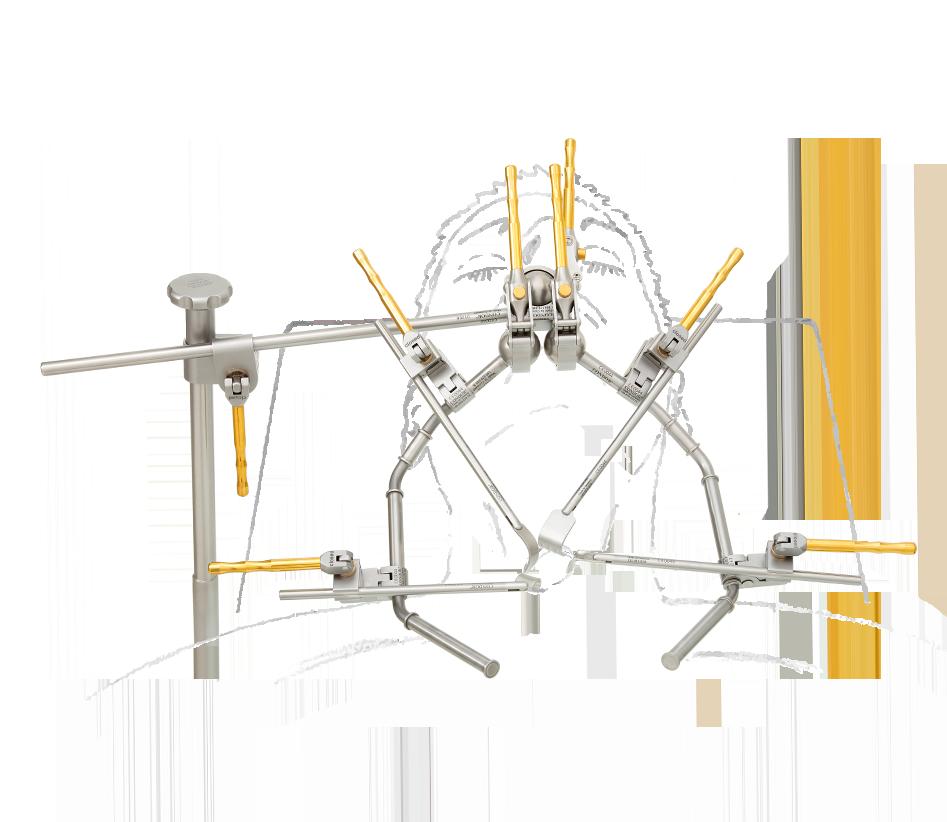 struma-chirurgie-mit-zeichnung