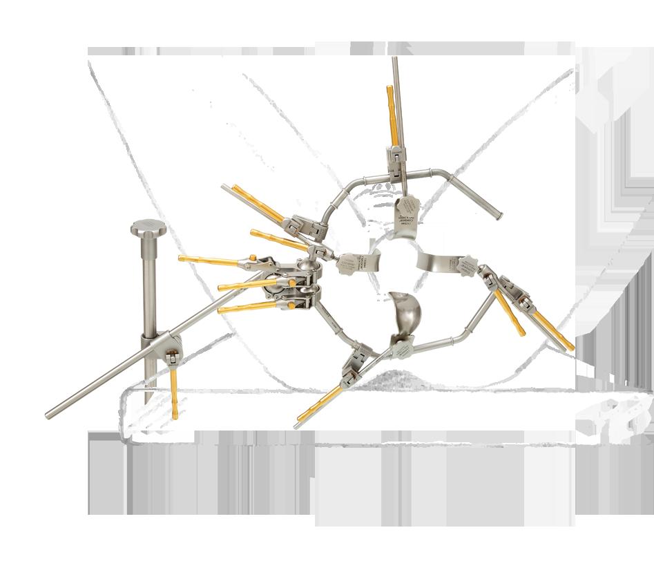 vaginale-hysterektomie-gynaekologie-mit-zeichnung